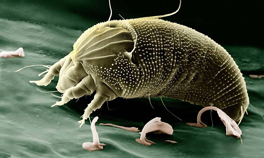 Dust Mite Under a Microscope